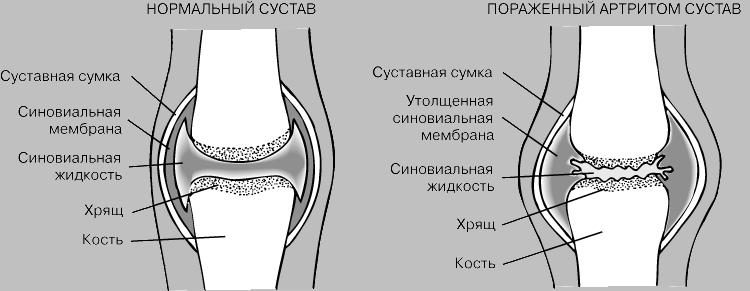 Суставная поверхность немецкий медпрепарат от суставов